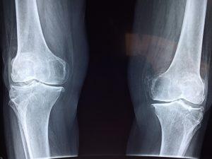artroser na ból kolan